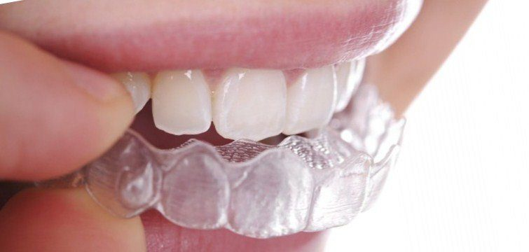 Straighten Your Smile with Invisible Braces