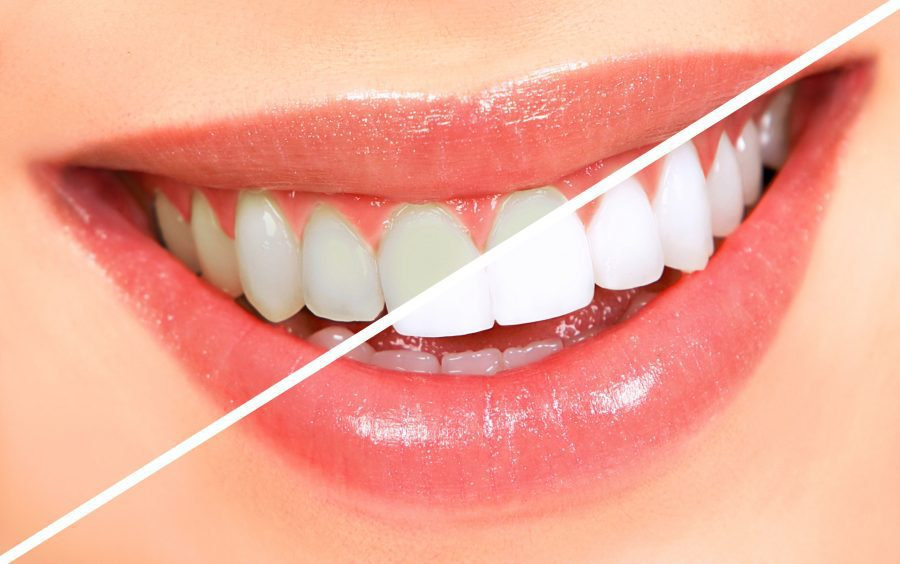All You Need To Know About Teeth Whitening Procedure
