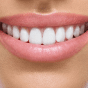 How Dental Implants Can Improve Your Quality Of Life