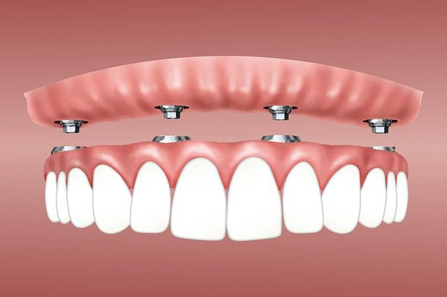 Why Dental Implants are Worth Investing on? Know these 5 Reasons