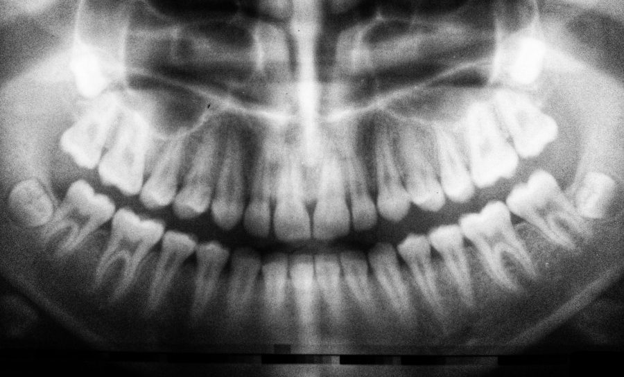 What Are The Signs That Wisdom Tooth Extraction Area Has Healed Properly?