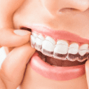 Why Should You Consider Getting Invisible Braces?