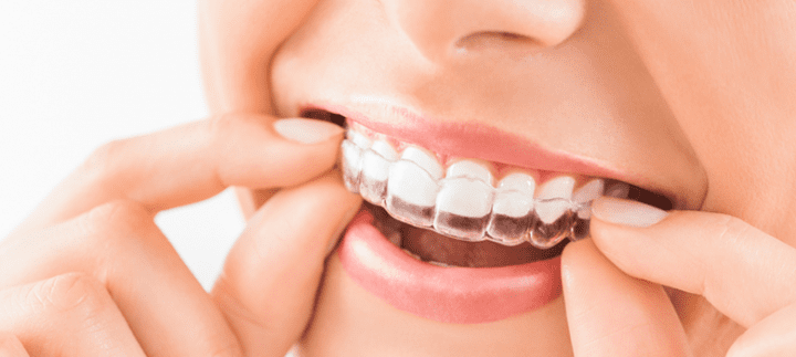 INVISIBLE BRACES from $1650
