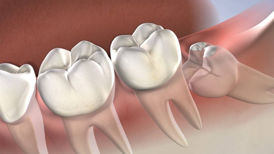 Symptoms that indicate you should undergo Wisdom Teeth Removal Procedure