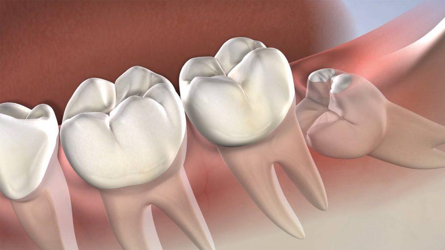 Symptoms that indicate you should undergo Wisdom Teeth Removal Procedure