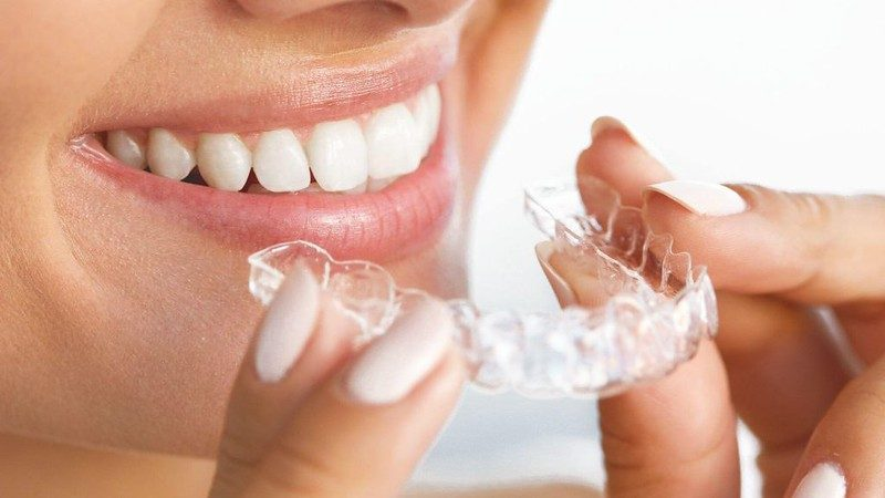 Invisible Braces vs. Conventional Braces – Which Is Better