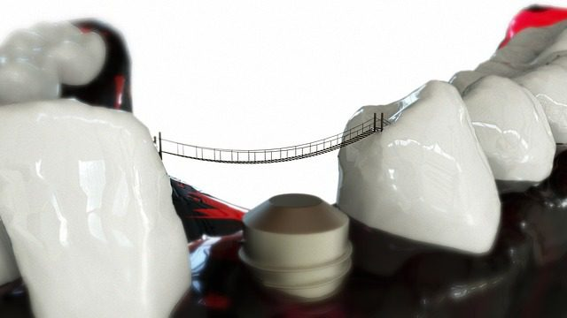 Why Dental Bridge/Denture Wearers Should Consider Dental Implants?
