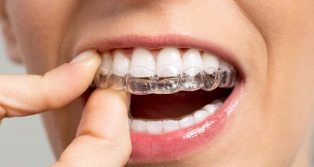 Invisible Braces Are the Perfect Solution for Orthodontic Issues
