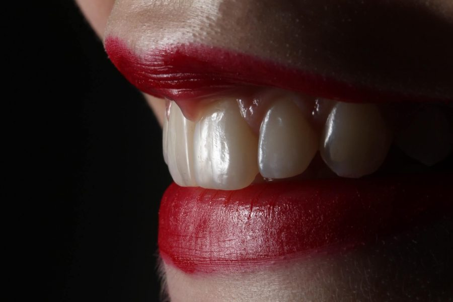 Teeth Cleaning Vs. Teeth Whitening – Know the Difference