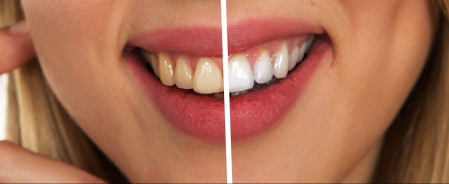 Why You Should Whiten Your Teeth Professionally And Regularly?