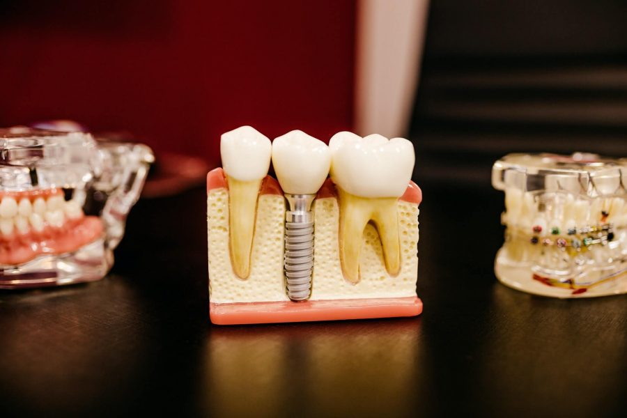 Why Choose Dental Implants Over Other Teeth Replacement Options?