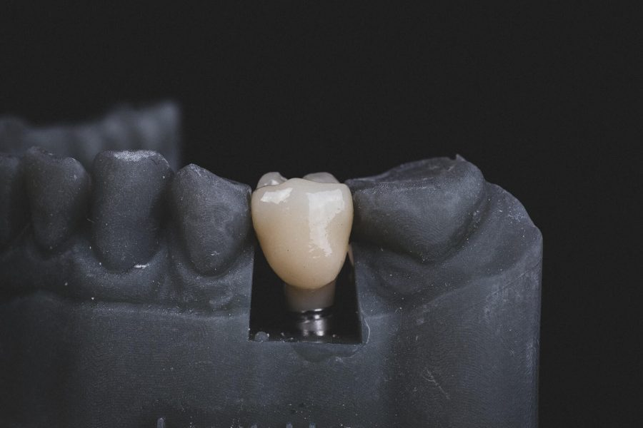 5 Common Problems that can be Resolved by Dental Implants
