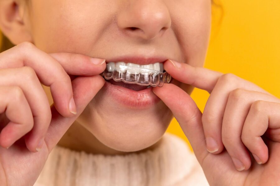 Reasons to Consider Invisible Braces